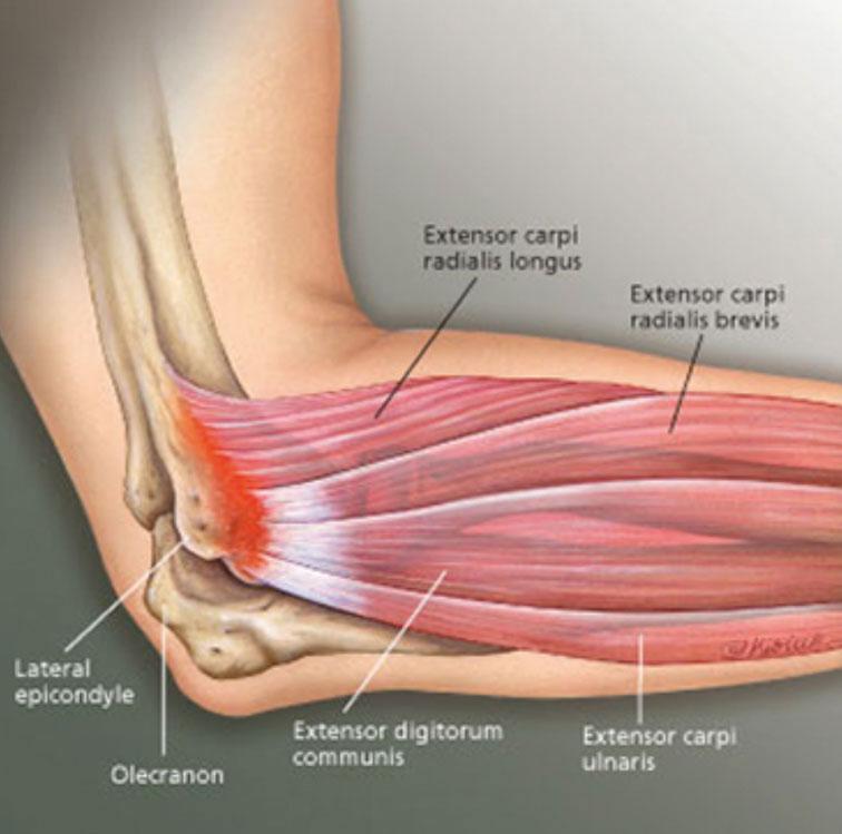 artrose oorzaak